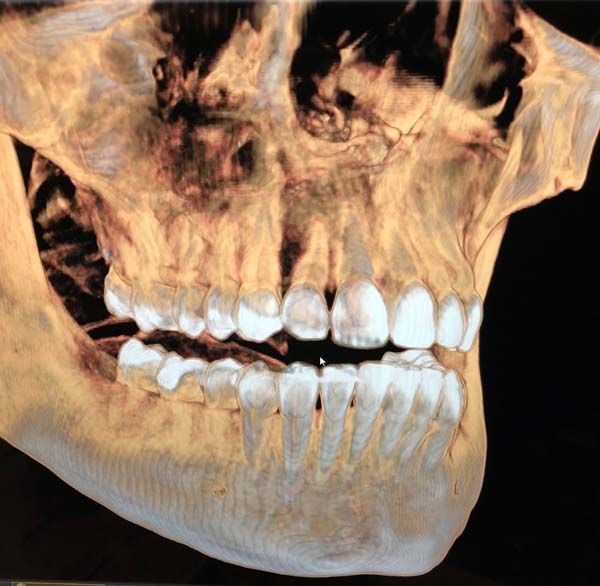 A 3D X-ray at LakeView Dental Arts in Kingston, TN