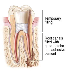 Root canal treatment illustration at LakeView Dental Arts