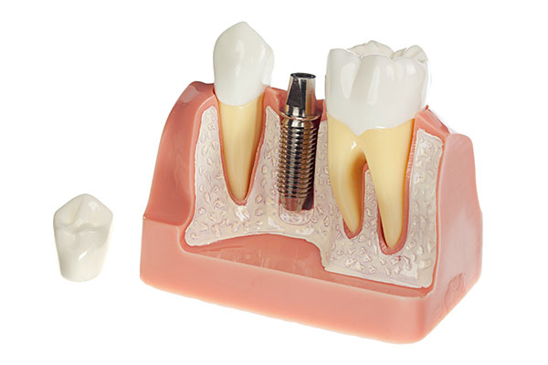 Implant Crown at LakeView Dental Arts